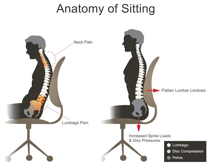 nem csak a matracon, hanem a széken is sok múlik, ha gerincsérvről van szó!